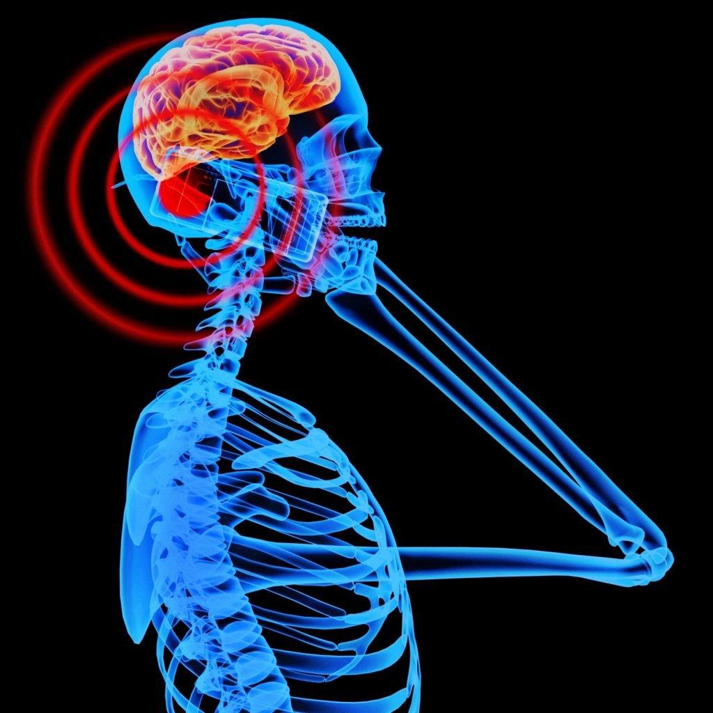 electromagnetic-emission